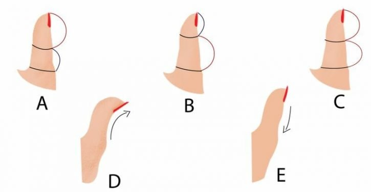 Here Is What Reveals The Shape Of Your Thumb About Your Personality