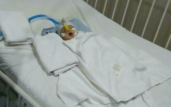 Bayi asal Batubara yang alami penyempitan jantung.