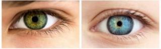 Eyelid Surgery Done