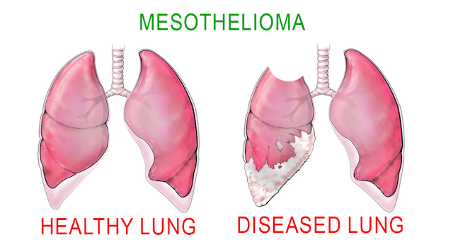 Treatment of Mesothelioma and Mesothelioma Prevention