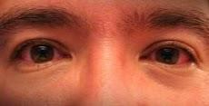 Cara Mengatasi Sakit Mata Akibat Las Listrik ( Pengalaman )