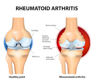 Anatomical view of Rheumatoid Arthritis