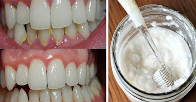 4 Steps to Whiten Yellow Teeth, Remove Plaque And Tartar Buildup