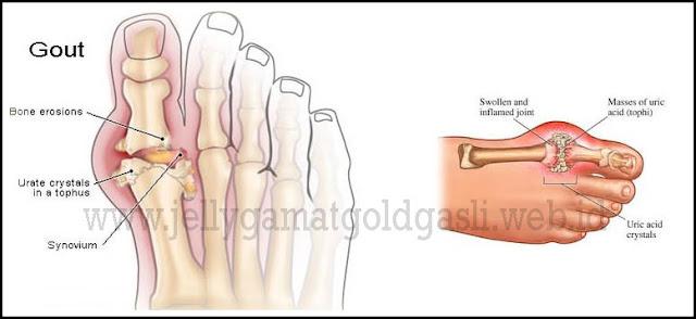 Obat Mujarab Untuk Gout