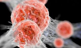 cara membuat rebusan daun sirsak, manfaat daun sirsak untuk kecantikan, khasiat daun sirsak terbaru, daun sirsak obat kanker, manfaat buah sirsak untuk kesehatan, manfaat daun sirsak untuk kista ovarium, efek samping daun sirsak, manfaat daun sirsak untuk kolesterol