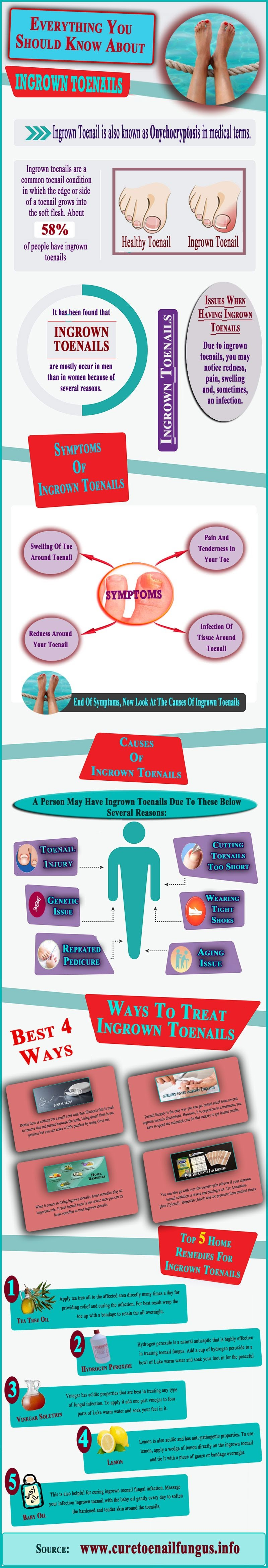Everything You Should Know About Ingrown Toenails #Infographic