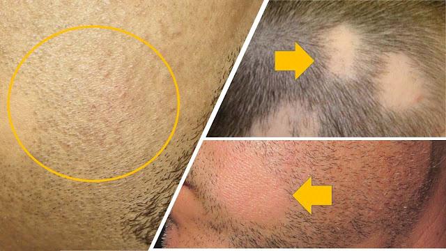 Estos mitos sobre la alopecia impiden que uses el tratamiento correcto