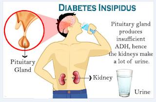 Diabetes insipidus - Gejala, penyebab dan mengobati, Penyebab Diabetes Insipidus - Alodokter, Diabetes Insipidus - Pengertian, Gejala, Penyebab, Pengobatan