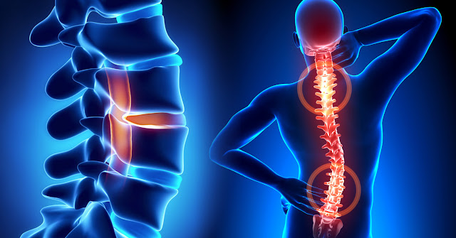 Endoscopic Spine Surgery – An Overview