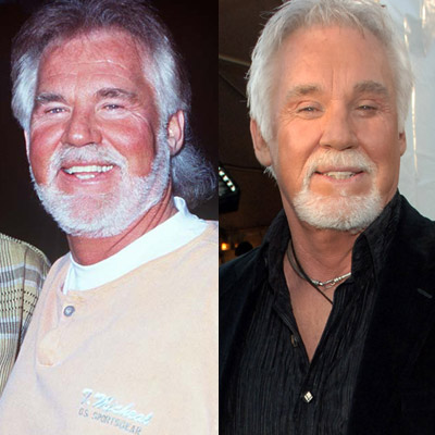 Chatter Busy Kenny Rogers Bad Plastic Surgery