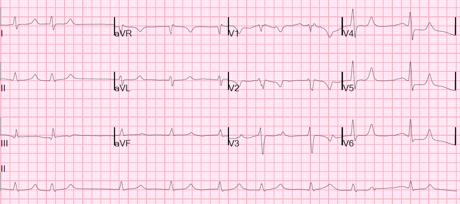 Dr Smith's Ecg Blog October 2015. Marketing Professional Services Firms. Elite Matchmaking Los Angeles. Washington Nursing Schools Form A Corporation. Looking For App Developer Toyota With Cummins. Cancer Treatment Florida Month To Month Cable. Water Safety Instructor Course. Air Conditioning Service Cape Coral. Project Management Certification Denver