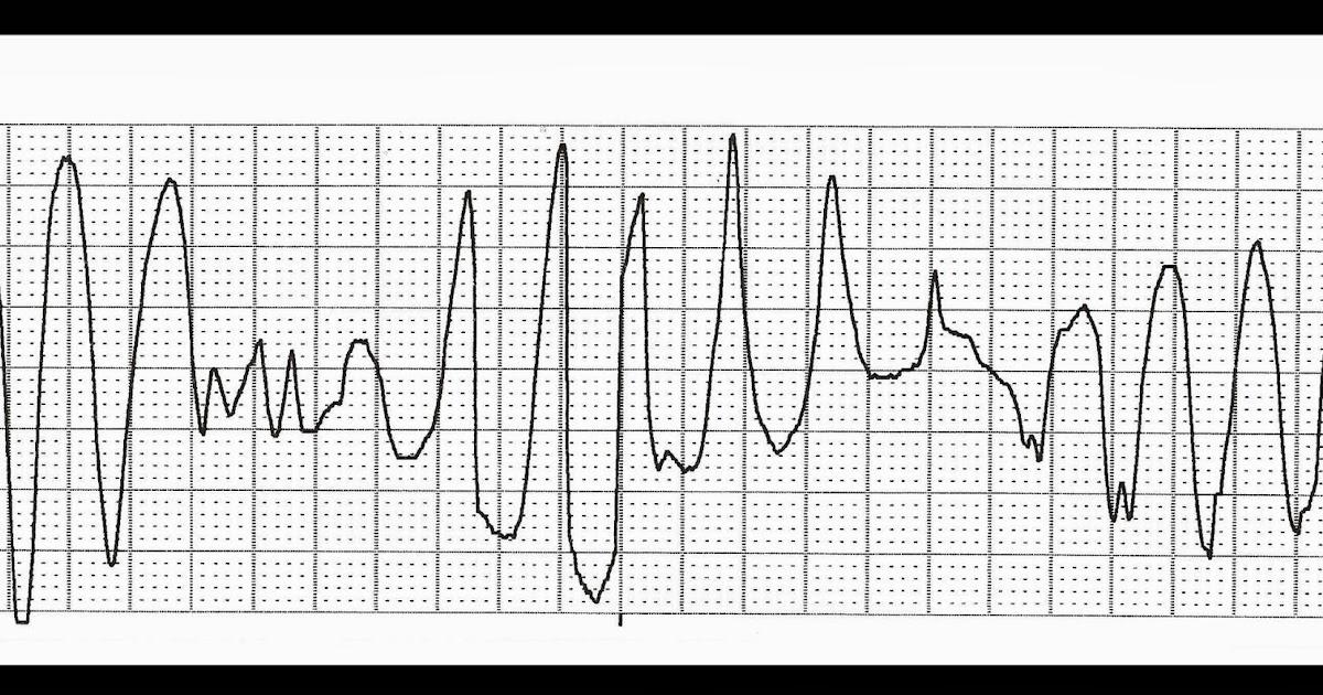 Float Nurse: Basic EKG Rhythm Test 16