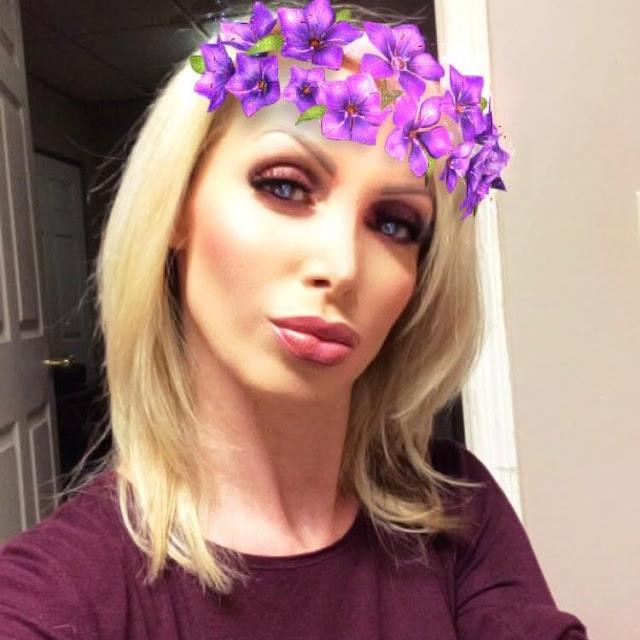 Nikki-Benz-plastic-surgery-selfie-image
