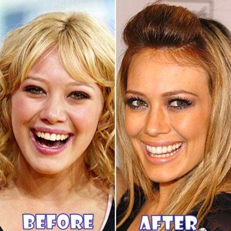 Before u0026amp; after Celebs whou0026#39;ve fixed their teeth | Teeth