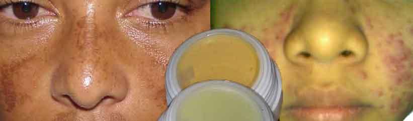 Efek Buruk Kosmetik Yang Mengandung Bahan Berbahaya