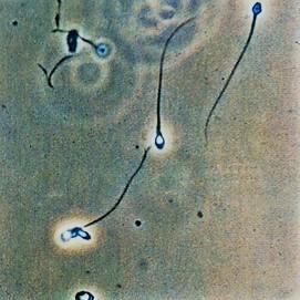 idrarda sperm