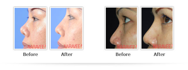 Nose Augmentation-Nose Lift-Nose Job-Thailand-Plastic Surgery
