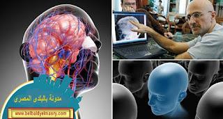 الجراح الايطالى سيرجو كانافيرو ينجح فى عملية زرع رأس لحيوان