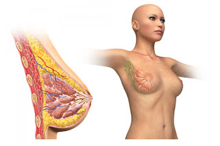 Gejala Kanker Payudara yang Harus Anda Waspadai