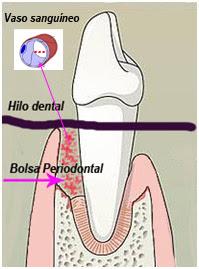 """<Imgsrc=""""Esquema-hilo-dental-bacteriemia.jpg"""" width = """"199"""" height """"269"""" border = """"0"""" alt = """"Introducción de patógenos periodontales en la sangre por daño a los vasos por la seda"""">"""