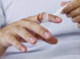 Herida en el dedo de Júpiter
