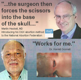 The surgeon then forces the scissors into the base of the skull.