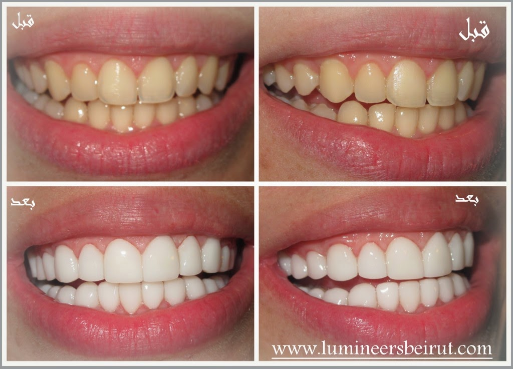 hollywood smile cost in Lebanon Beirut by top elite dentists