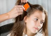 Saç bitlerinden yeni yöntemlerle kurtulma şekli