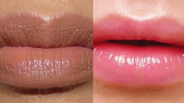 Cara Menghilangkan Bibir Hitam Secara Alami Dan Cepat