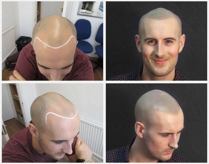 Top 50 hair loss treatments 1 skalp scalp for Tattoo bald spot