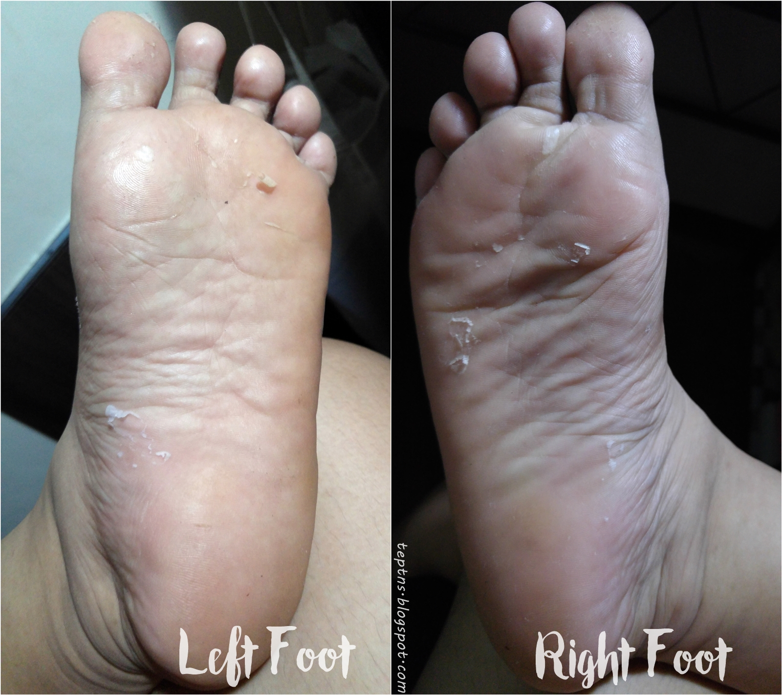 ec168e30acb611 Purederm s Exfoliating Foot Mask Review - Tep Tries New Stuff