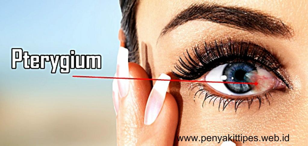 Obat Herbal Penyakit Mata Pterigium