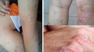 obat jamur gatal selangkangan dan pantat yang ampuh