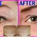 3 Steps Treatment In Eliminating Wrinkles On Your Face To Achieve Younger Glowing Skin
