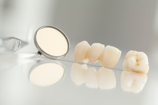 Dental crowns in Cortlandt Manor support failing teeth