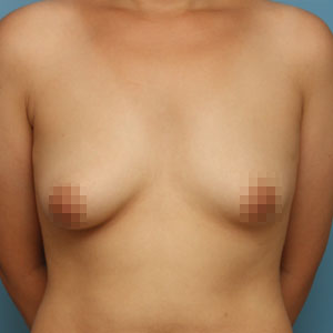 짱이뻐! - Korea Breast Surgery Gave Me Back My Confidence