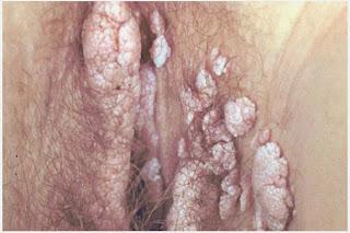 penyakit jamur kutil kelamin ibu hamil