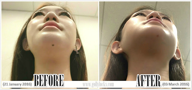Mole Removal Review at Nu-Reflections