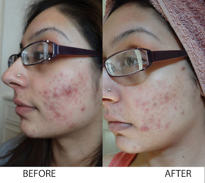 Turmeric for Acne Scars Before and After