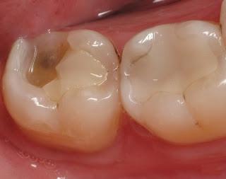 Đâu là cách chữa sâu răng nhanh nhất?