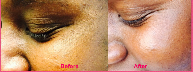 best anti-aging serum, before and after pictures of wrinkled faces