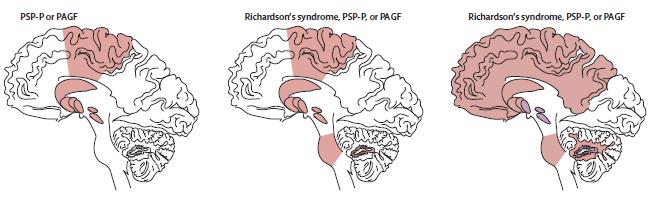 Enfermedad Cerebral Multiinfarto Pdf