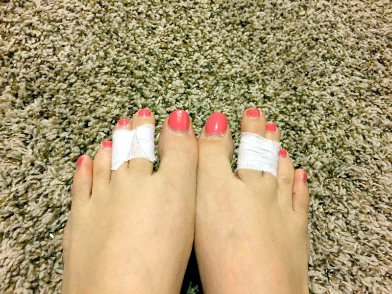 Tape your toes