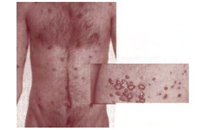 Penyakit yang disebabkan virus HIV
