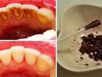 Gigi Kuning dan Bau Mulut Pasti Bikin Malu, Tapi Bisa Hilang dengan Resep Sederhana Ini, Begini Caranya