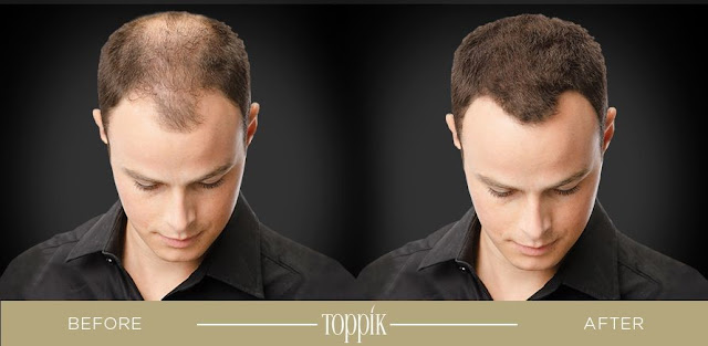 toppik, toppik malaysia, toppik hair building fibers, hair thinning