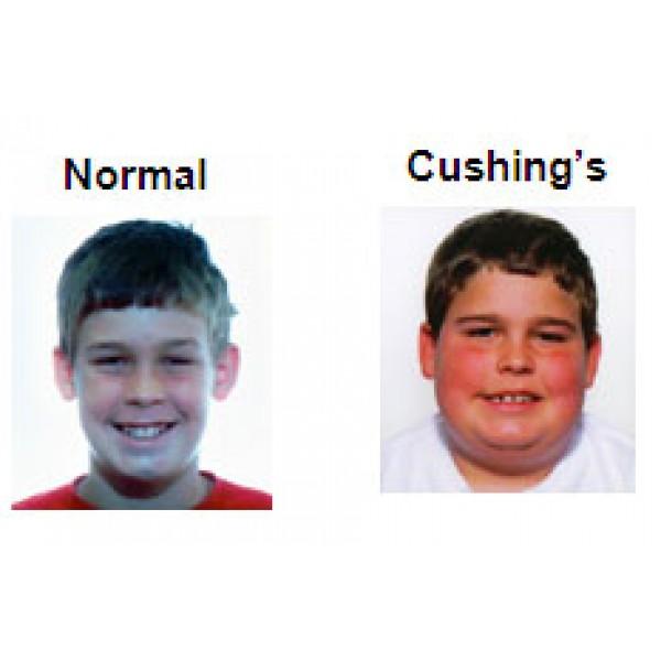 Apa itu cushing syndrome (sindrom cushing)?