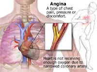 Pengobatan Penyakit Jantung Angina Pektoris, pengobatan angina pektoris, obat penyakit angina pektoris, pengobatan angina pektoris secara alami, pengobatan angina pektoris secara medis