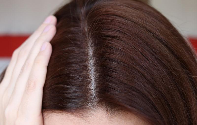 L contre la chute des cheveux