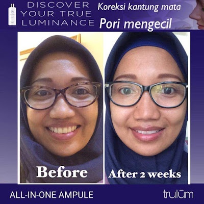 Jual Obat Penghilang Kantung Mata Trulum Skincare Geulumpang Tiga Pidie